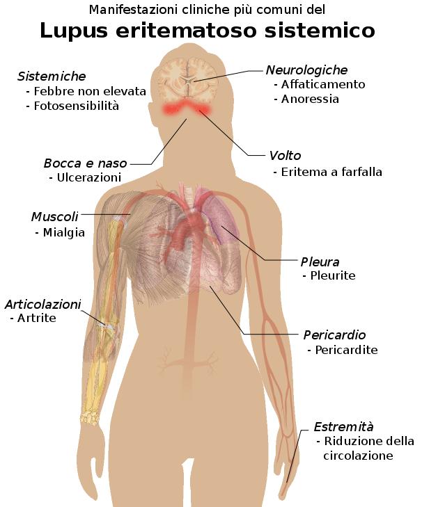 Studio medico Gallotti - connettivite